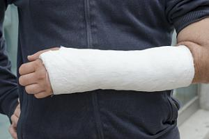 Person with arm cast on